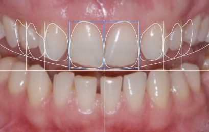 HELP in Smile Design & Composite Layering – May 2019