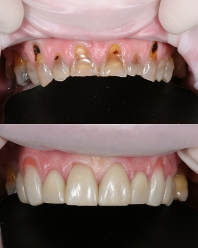 Smile Design & Composite Layering